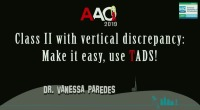Class II with Vertical Discrepancy: Make it Easy, Use TADs!
