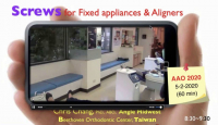 TAD Mechanics for Fixed Appliances and Aligners