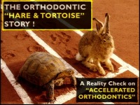 The Orthodontic 'Hare & Tortoise' Story: A Reality Check on Accelerated Tooth Movement