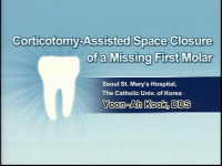 Corticotomy-assisted Accelerated Space Closure of a Missing Molar by Utilizing the Third Molar