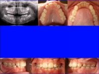 Point/Counterpoint: Extraction in the Mixed Dentition -- A Reasonable Option for Selected Patients?