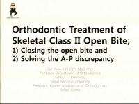 Orthodontic Treatment of Skeletal Class II Open Bite