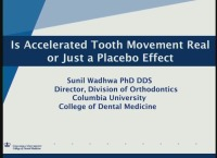 2018 AAO Annual Session - Is Accelerated Tooth Movement Real or Just a Placebo Effect?
