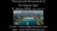 2019 AAO Annual Session - Periodontal Movements in the Aligner Age