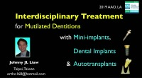 2019 AAO Annual Session - Interdisciplinary Treatment for Mutilated Dentitions with Mini-implants, Dental implants and Autotransplants