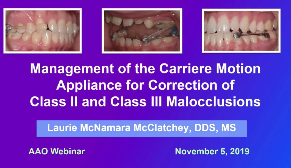 2019 Webinar - Management of the Carriere Motion Appliance Prior to Treatment with Fixed Appliances or Clear Aligners