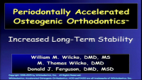 Periodontally Accelerated Osteogenic Orthodontics