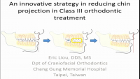 An Innovative Strategy in Reducing Chin Projection in Class III Orthodontic Treatment