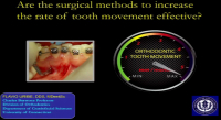 Are the Surgical Methods to Increase the Rate of Tooth Movement Effective?