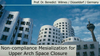 Non-compliance Mesialization for Upper Arch Space Closure