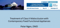 Treatment of Class II Malocclusion with Contemporary Fixed Functional Appliances