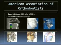 2013 Annual Session - CBCT: Identification of Anatomic Boundary Conditions Important to Orthodontists / Orthodontic Complications Seen in 3-D