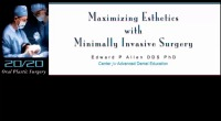 2014 Annual Session - Maximizing Esthetics with Minimally Invasive Soft Tissue Grafting
