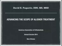 2014 Annual Session - Advancing the Scope of Aligner Treatment / On the Nature of Aligner Performance