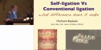 2011 NESO Annual Meeting - Self-Ligation vs. Conventional Ligation: What Difference Does It Make?