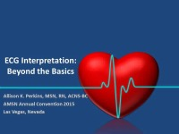 EKG Interpretation: Beyond the Basics