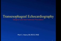 13. Surgical-Interventional Echocardiography