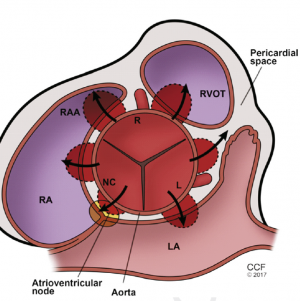Sinus of Valsalva Aneurysms: A State-of-the-Art Imaging Review
