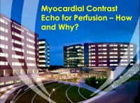 Myocardial Contrast Echo for Perfusion - How and Why?