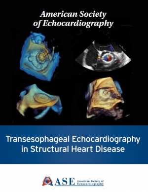 Transesophageal Echocardiography in Structural Heart Disease
