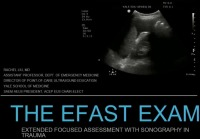 POCUS Basics: Ultrasound for the Critically Ill Patient - Ultrasound for the Bleeding Patient: eFAST