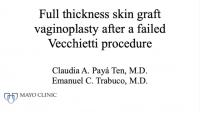 Full thickness skin graft vaginoplasty after failed Vecchietti procedure