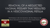 Removal of an incarcerated vaginal pessary