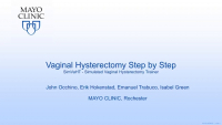 TVH - STep-by-STep