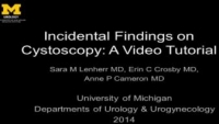 Incidental Finding on Cystoscopy: A Video Tutorial