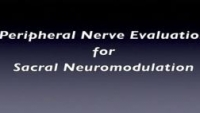Peripheral Nerve Evaluation for Sacral Neuromodulation