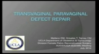 Transvaginal Paravaginal Defect Repair Using a Suture-capturing Device