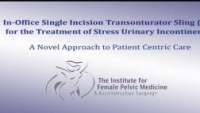 In Office Single Incision Transobturator Sling (Sis) for the Treatment of Stress Urinary Incontinence: A Novel Approach to Patient Centric Care