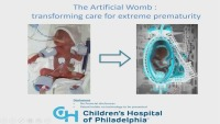 The Artificial Womb: Transforming Care for Extremely Premature Babies ACPE #0263-000-18-947-L01-P (1.25 Contact Hrs.) & Questions & Discussion (Rx =.25 Hr.)