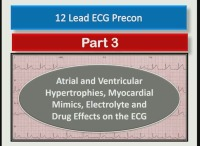Atrial and Ventricular Hypertrophies, Myocardial Mimics, Electrolyte and Drug Effects on the ECG