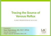Tracing the Source of Venous Reflux