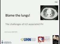 PRE-MEETING SYMPOSIUM 04: Under Pressure: Pulmonary Hypertension in Parenchymal Lung Disease -- PH in ILD: Pathophysiology and Epidemiology