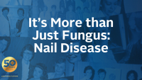 It's More than Just Fungus: Nail Disease
