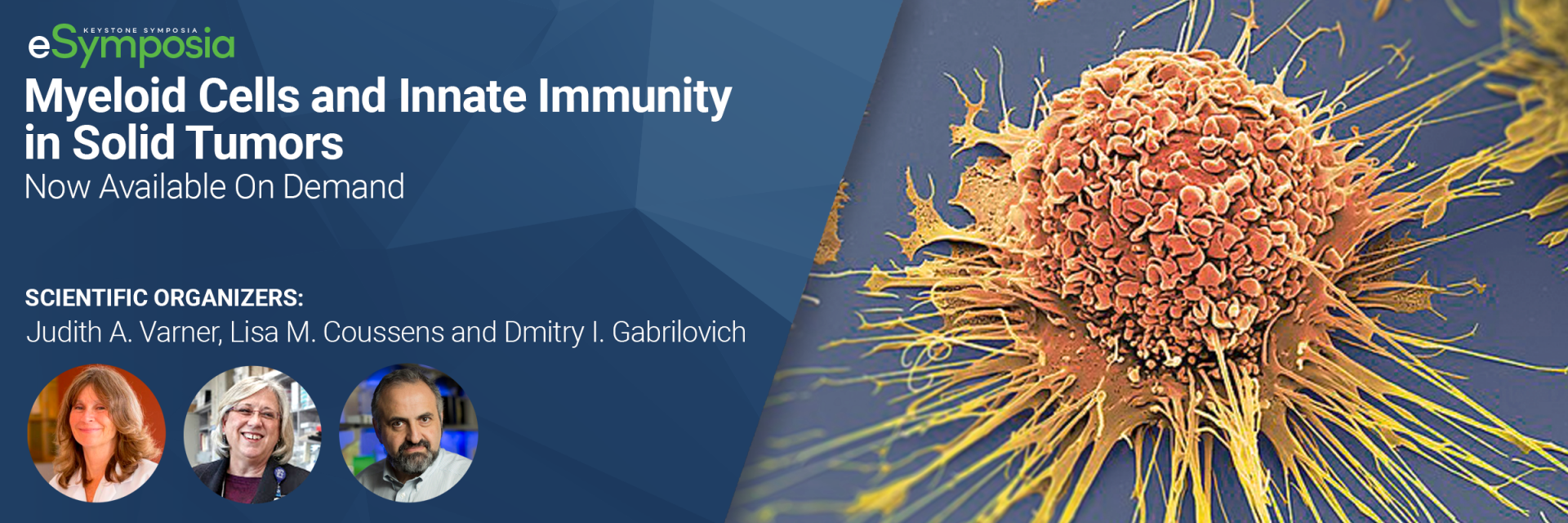 Myeloid Cells and Innate Immunity in Solid Tumors
